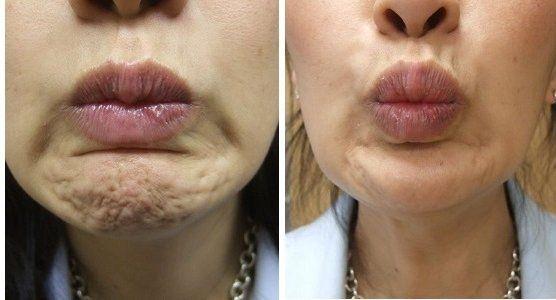 Lakshya— Xeomin lip filler