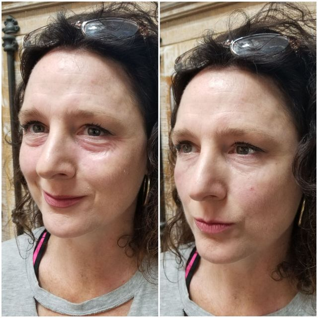 Natural Injections Med Spa by Laura