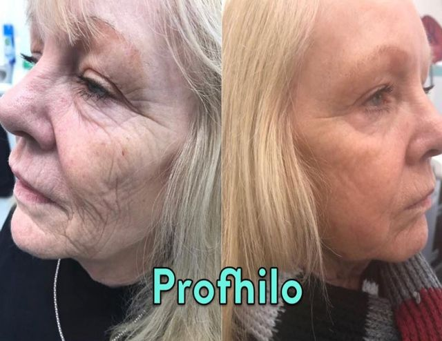 Profhilo® (Skin Hydration Treatment)