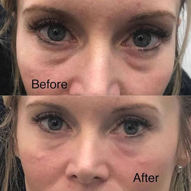 Tear Trough Dermal Fillers (Under the eye treatment)