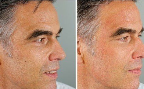 Blackhead Extraction Norwich | Mahmooda Gilani