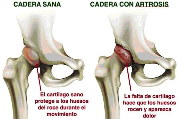 enfermedades subyacentes de artritis