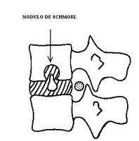 hernia de schmorl causas