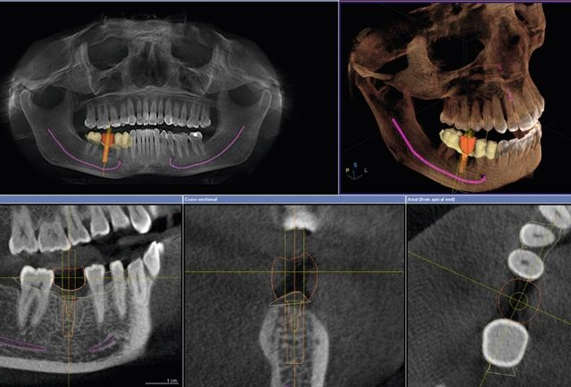 DVT-Diagnostik 3D-Röntgen Zahnärztin Sabine Leiber Bremen-Nord